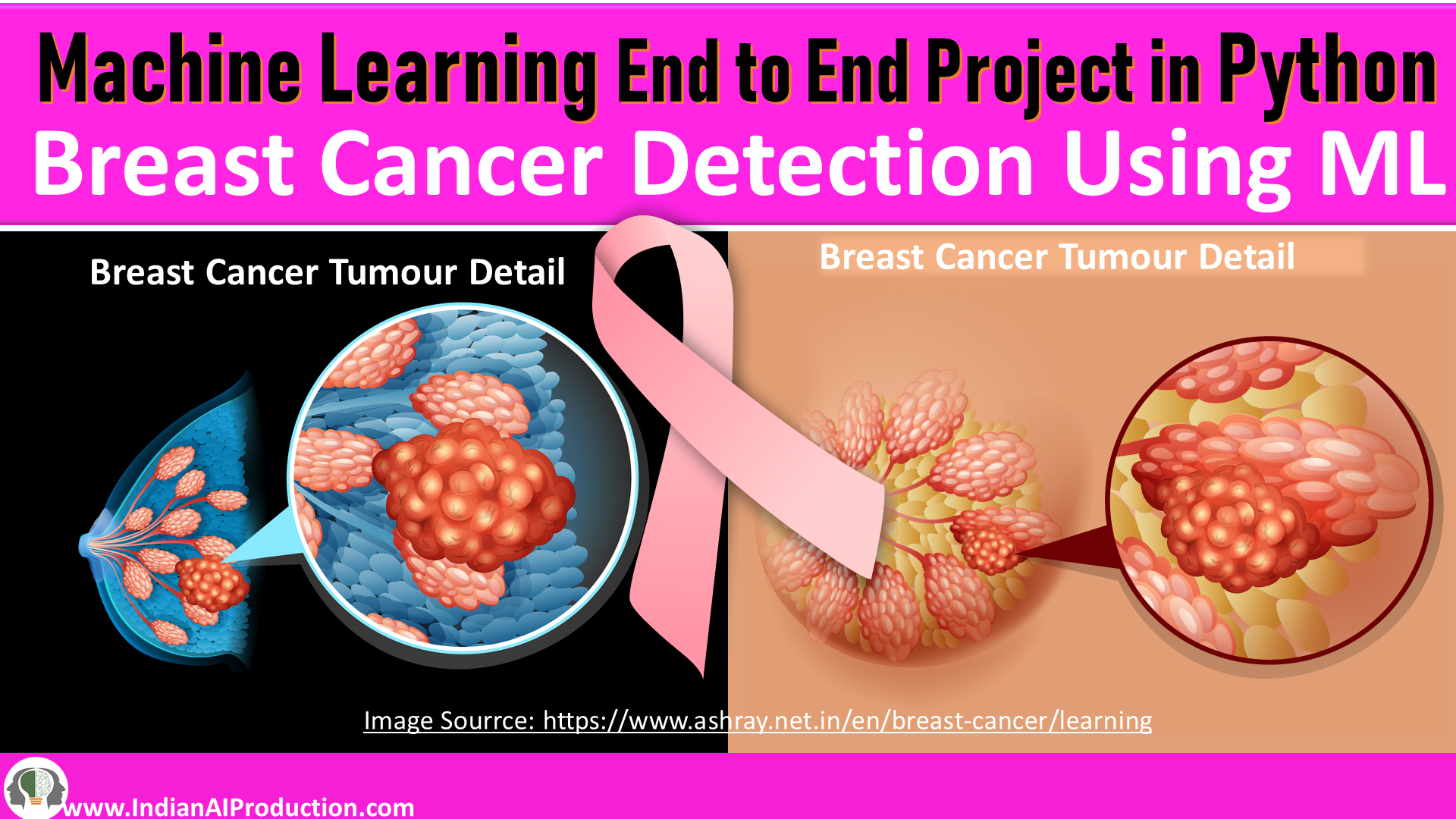 Breast-Cancer-Detection-Machine-Learning-Project